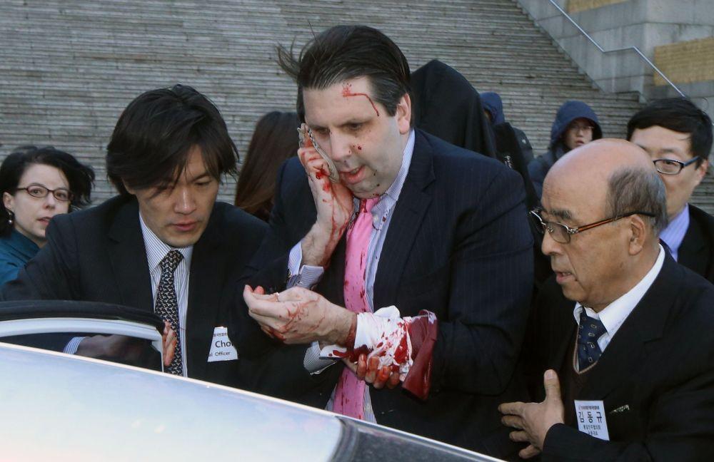 Attacco all'ambasciatore USA a Seul