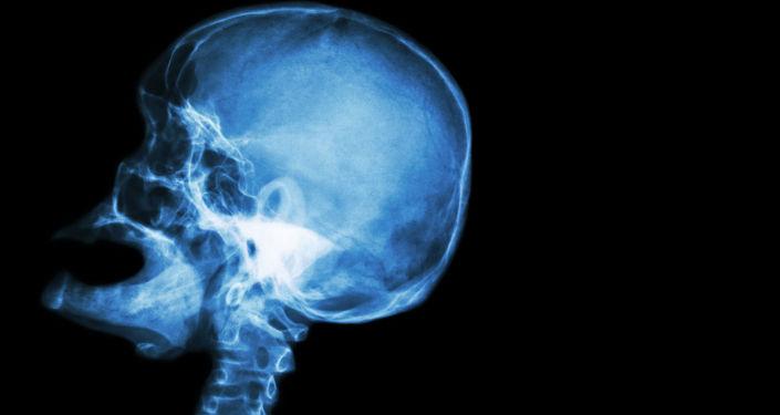 Una foto di cranio