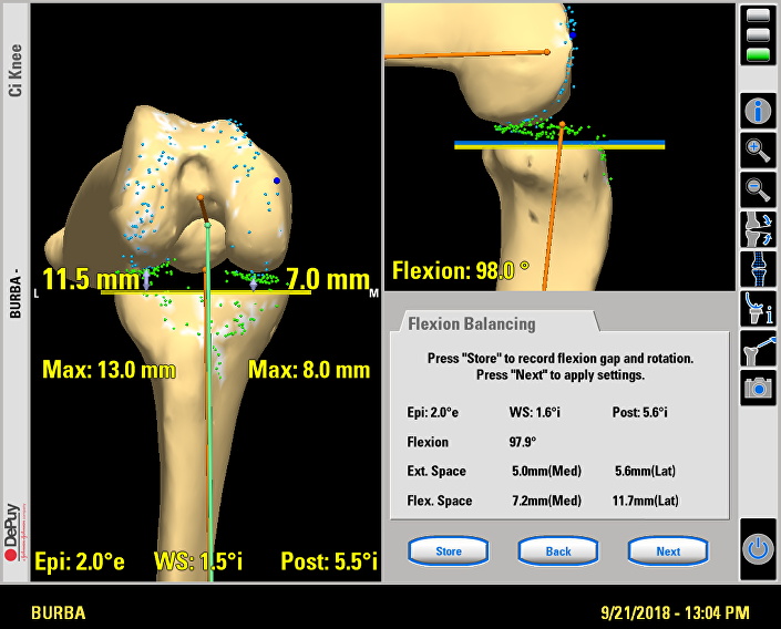 Immagine dell'articolazione del ginocchio grazie alla tecnologia informatica