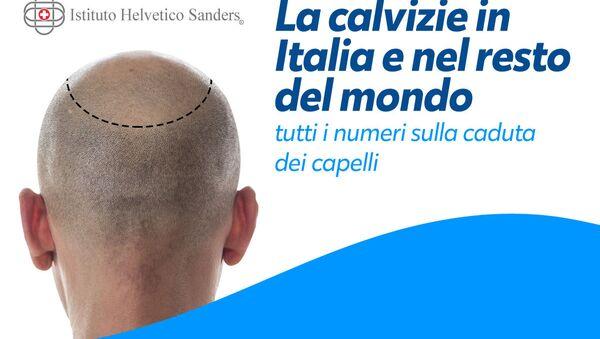 Tutto quello che bisogna sapere sulla calvizie - Sputnik Italia