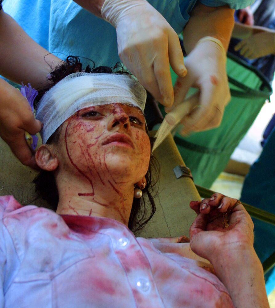 Una ragazza ferita durante l'assedio della scuola di Beslan