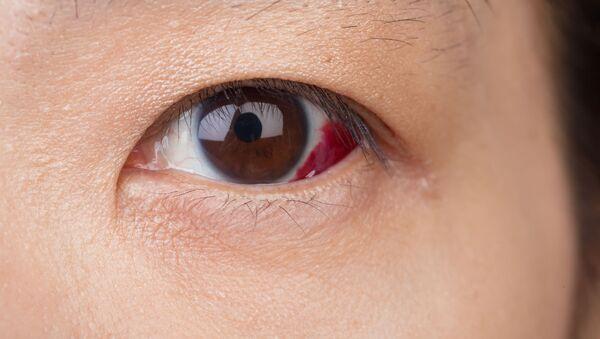 Occhio con sangue - Sputnik Italia
