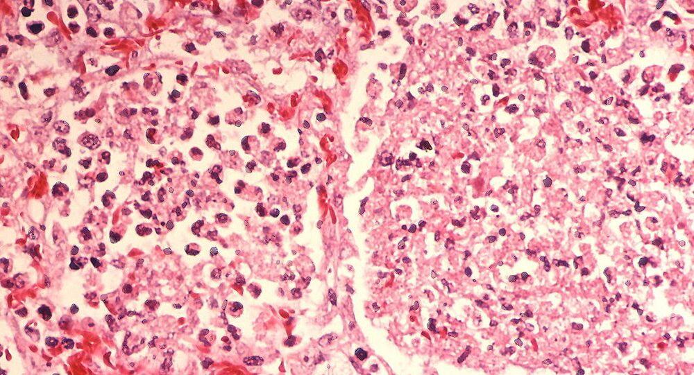 Legionella pneumonia