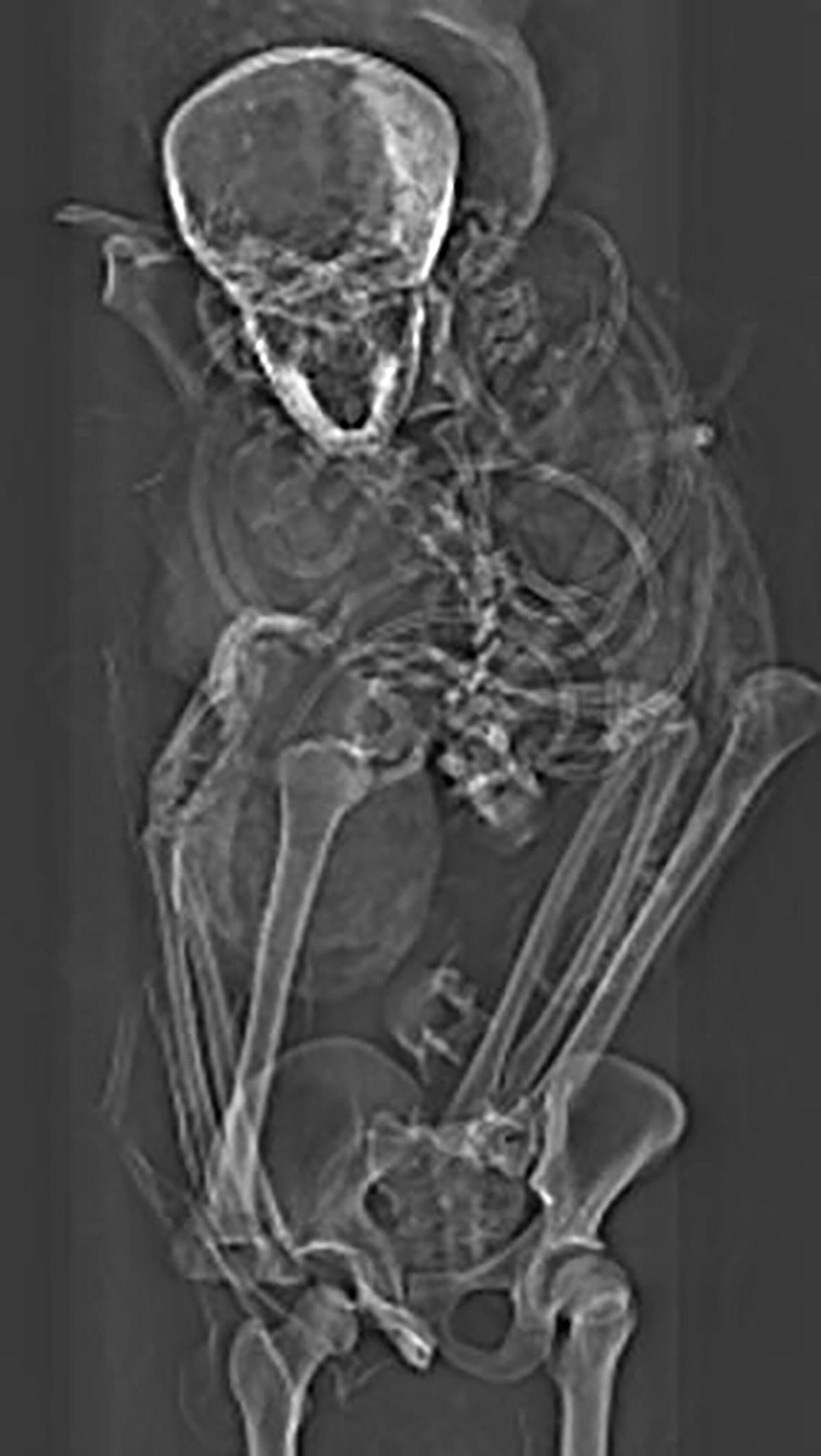 Scansione della mummia dimostra la morte violenta del valoroso faraone Seqenenra Ta'o - Foto - Sputnik Italia, 1920, 18.02.2021