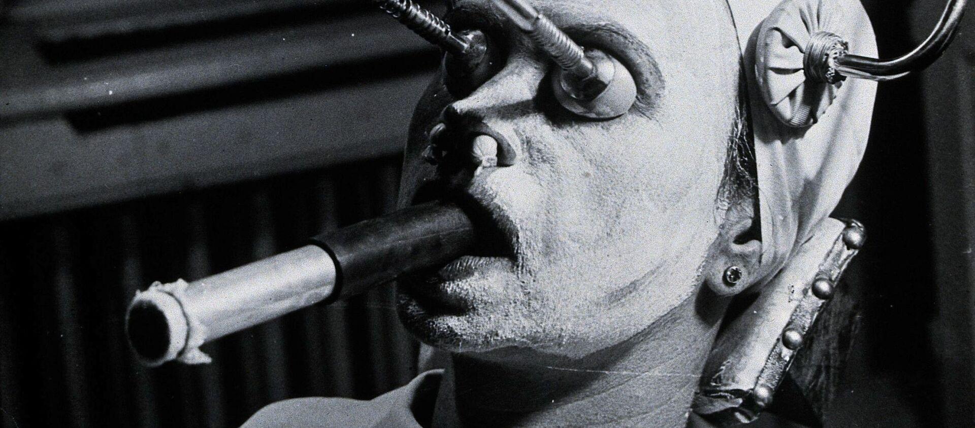Una struttura metallica viene utilizzata durante il peeling per rimuovere le lentiggini, uno speciale tubo di respirazione viene inserito in bocca durante la procedura.  Ungheria. - Sputnik Italia, 1920, 08.03.2021