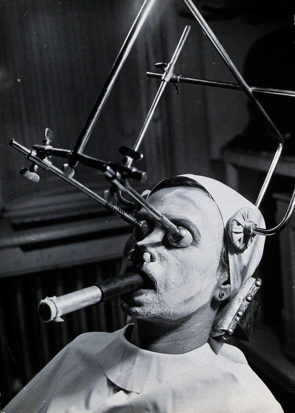 Una struttura metallica viene utilizzata durante il peeling per rimuovere le lentiggini; uno speciale tubo di respirazione viene inserito in bocca durante la procedura.  Ungheria. - Sputnik Italia