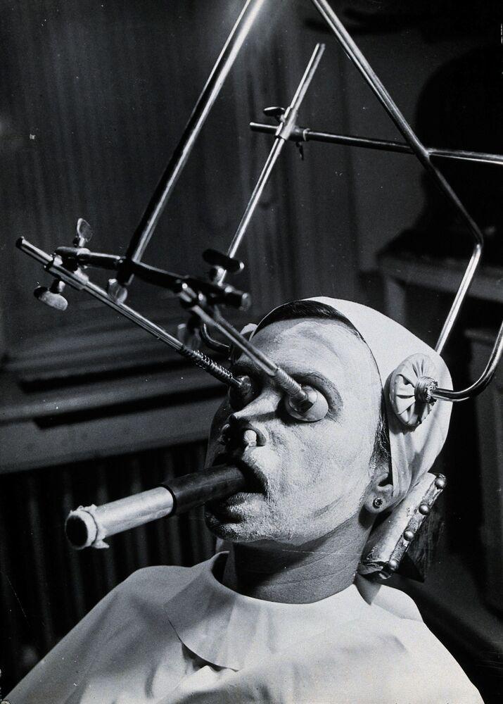 Una struttura metallica viene utilizzata durante il peeling per rimuovere le lentiggini; uno speciale tubo di respirazione viene inserito in bocca durante la procedura.  Ungheria.