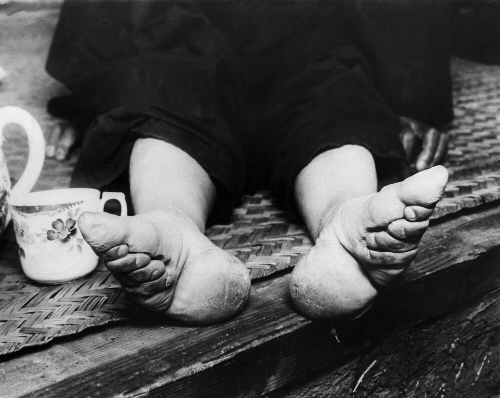 Le donne cinesi cercano di rimpicciolire le gambe legandole durante l'infanzia.  Foto scattata il 21 settembre 1936