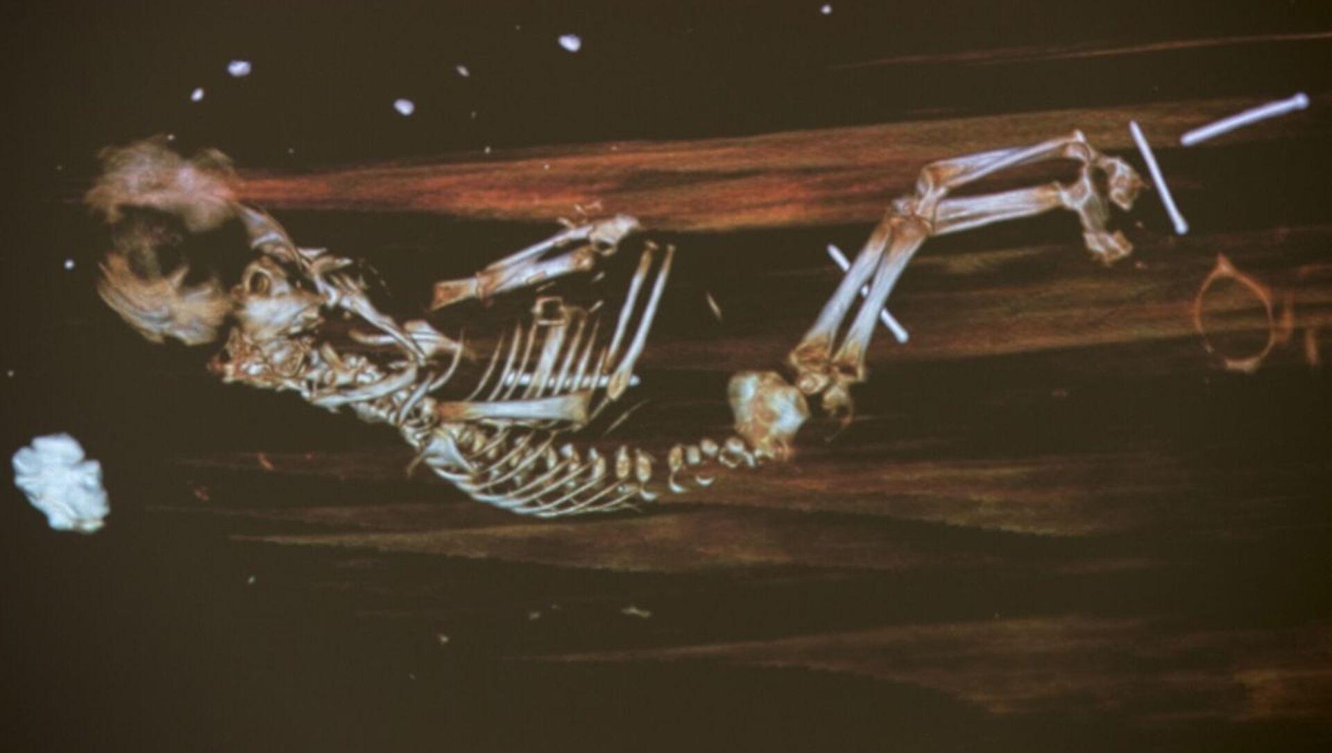 X-ray del feto sepolto con Peder Winstrup - Sputnik Italia, 1920, 12.04.2021