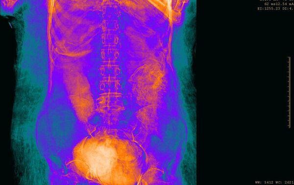 L'esame radiologico di un'antica mummia rinvenuta nelle tombe reali dell'Alto Egitto ha dimostrato che si tratta del corpo di una donna incinta. - Sputnik Italia