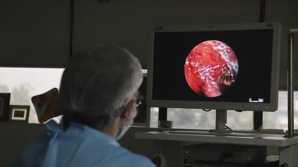 Индийский врач выполняет расширенную функциональную эндоскопическую операцию на носовых пазухах человеку, страдающему мукормикозом, в больнице на окраине Нью-Дели, Индия - Sputnik Italia