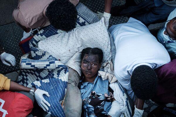 Un residente di Togoga (Etiopia) ferito ricoverato all'ospedale di riferimento di Ayder a Mekele, capitale della regione del Tigray, in Etiopia, il 23 giugno 2021, un giorno dopo un attacco aereo mortale su un mercato nella regione del Tigray settentrionale, devastata dalla guerra, in Etiopia.  - Sputnik Italia