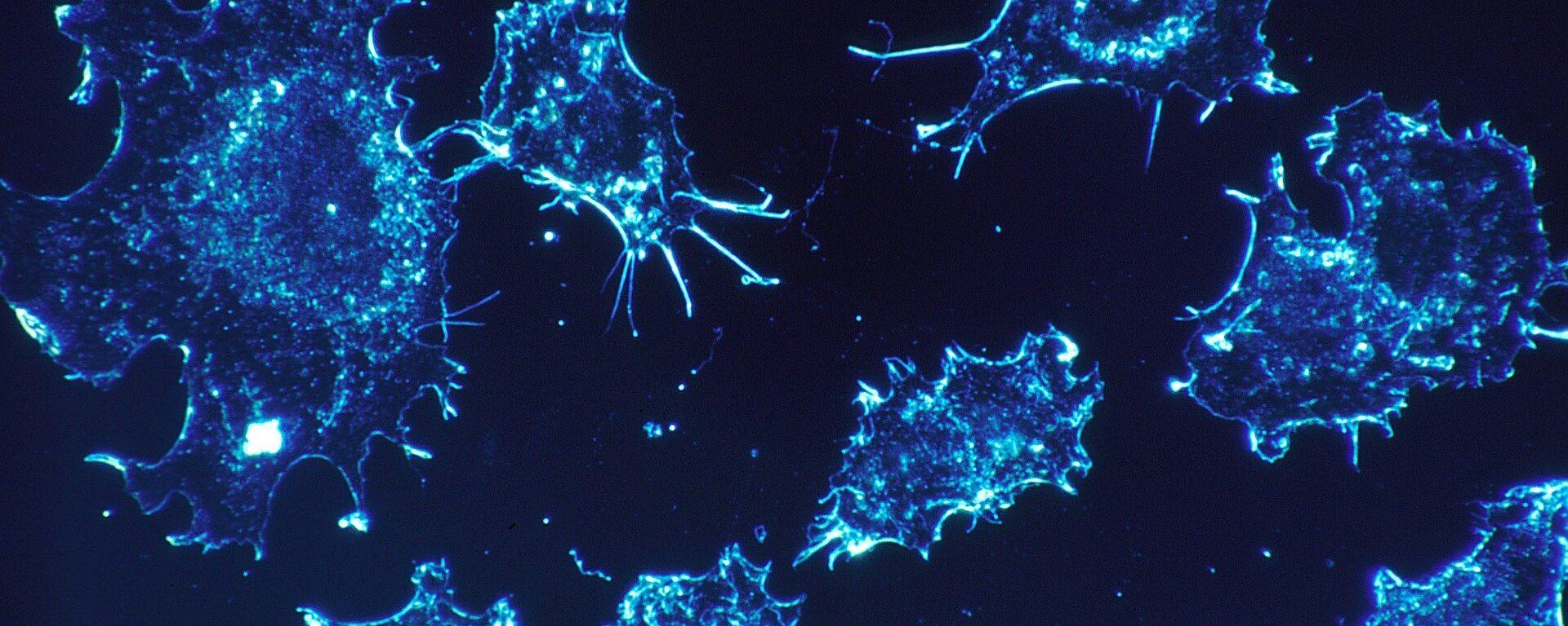 Le cellule cancerose  - Sputnik Italia, 1920, 04.06.2020