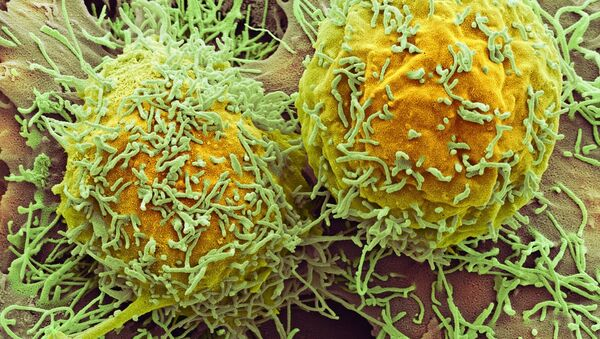Liver cancer - Sputnik Italia