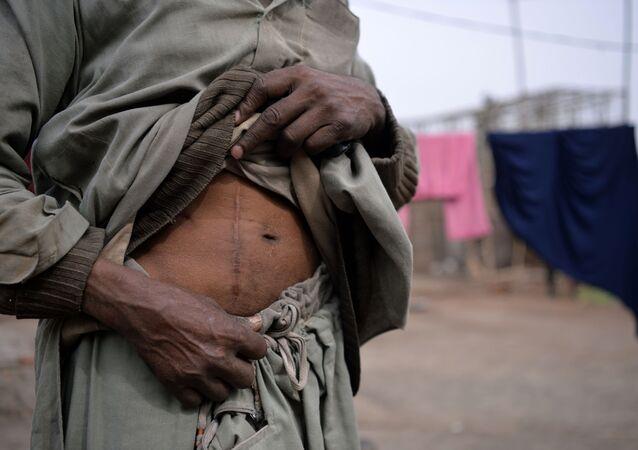 Uomo con cicatrice dovuta ad un operazione di asportazione di un rene