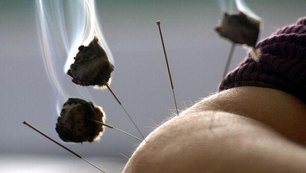 Agopuntura - Sputnik Italia