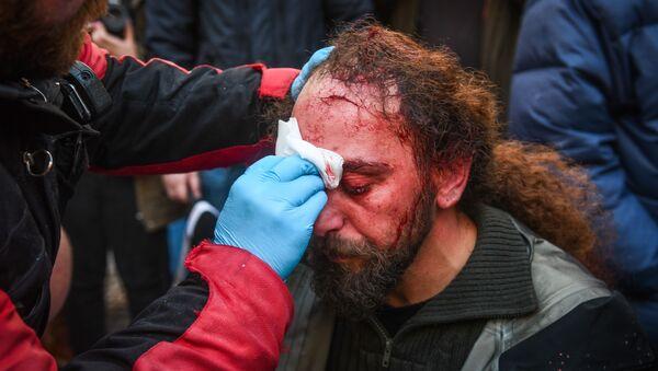Sputnik stringer Kostis Dadamis injured during the protests in Athens - Sputnik Italia