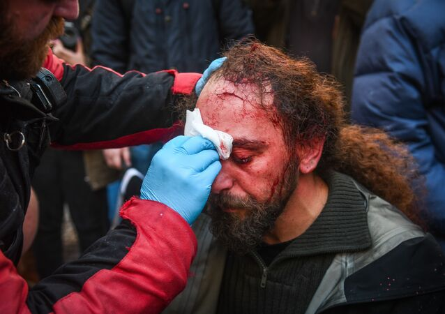 Sputnik stringer Kostis Dadamis injured during the protests in Athens