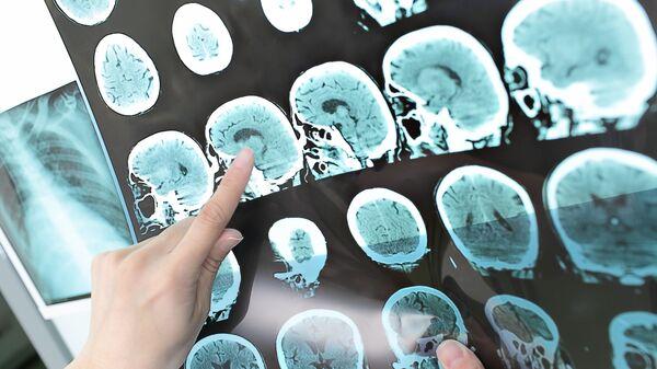 Risolnanza magnetica del cervello - Sputnik Italia