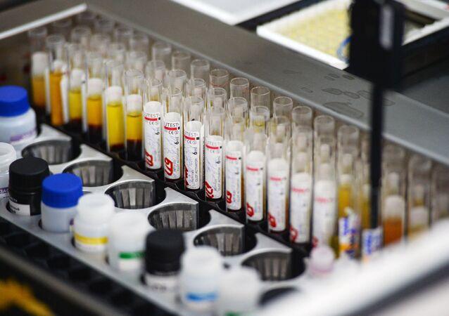 Laboratorio di screening immunologico il sangue viene testato per l'infezione (epatite, sifilide, HIV) su apparecchiature automatiche presso il centro di donazione del sangue di Novosibirsk.