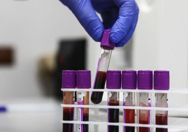 Provette con il sangue per analisi di laboratorio