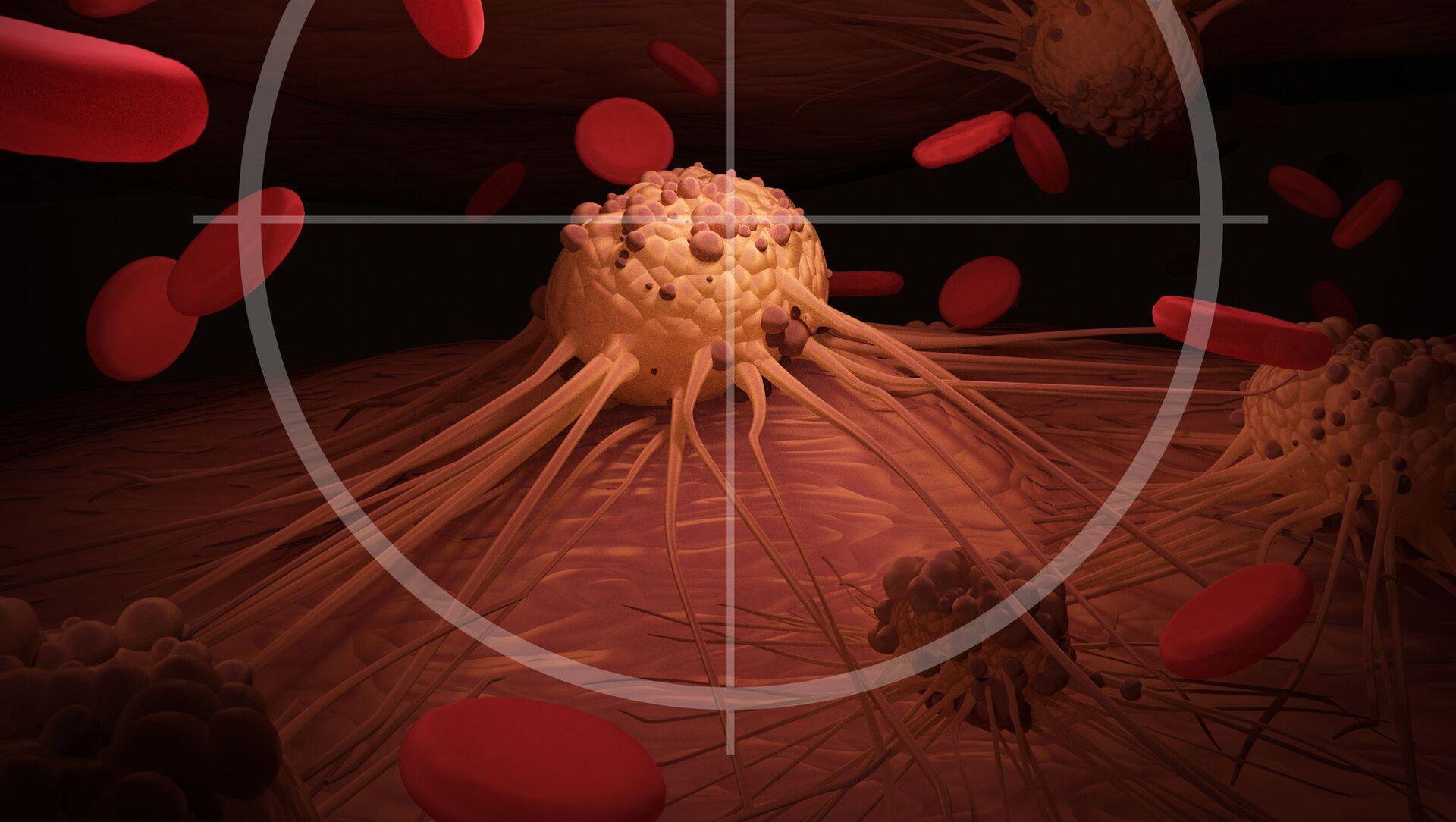 Le cellule cancerose - Sputnik Italia, 1920, 03.03.2021