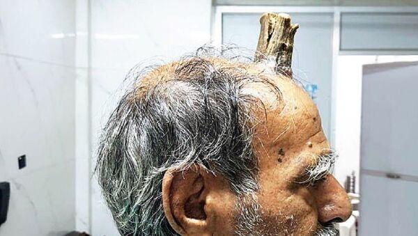 L'uomo indiano con il corno - Sputnik Italia