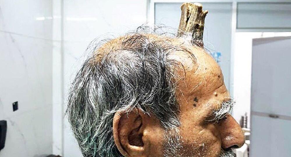 L'uomo indiano con il corno