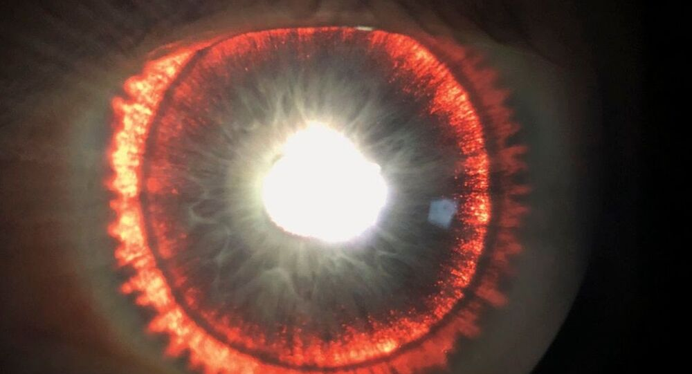 Case of Pigment Dispersion Syndrome (PDS) with Iris transillumination defects