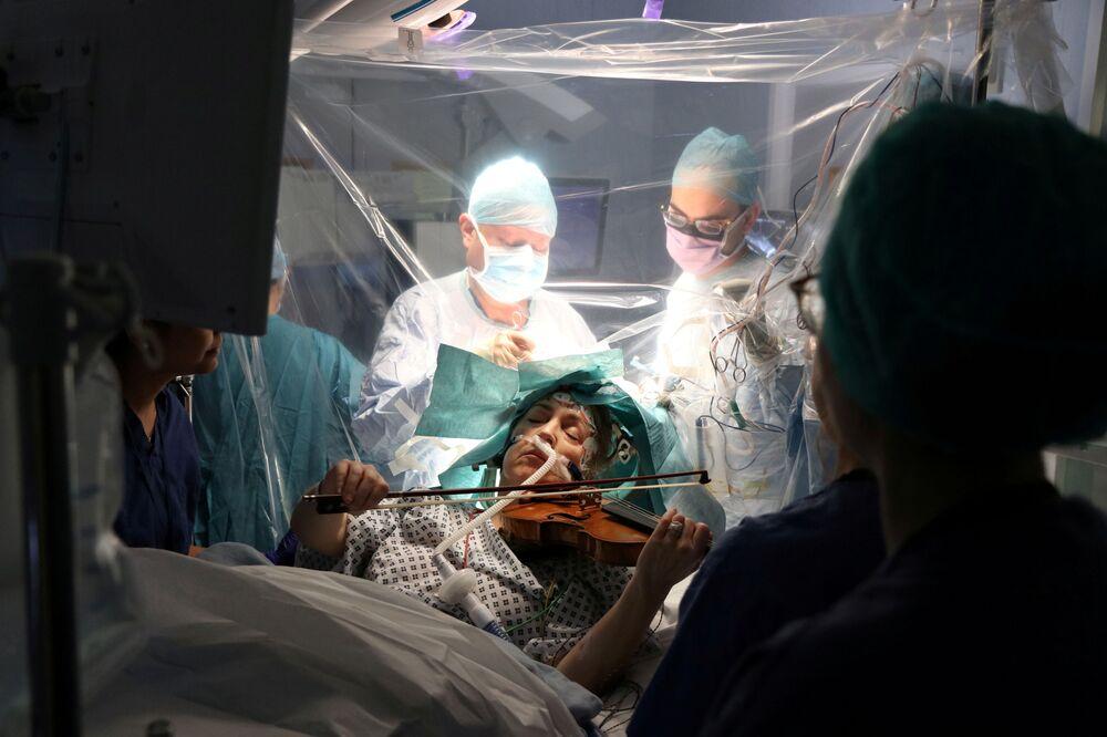 Dagmar Turner, 53 anni, suona il violino mentre i chirurghi rimuovono il tumore dal suo cervello al King's College Hospital di Londra, Gran Bretagna